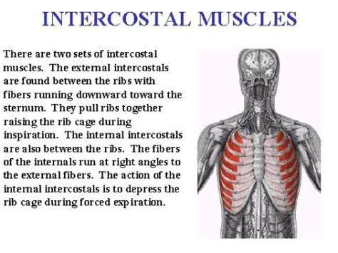 intercostsal muscle strain picture 13