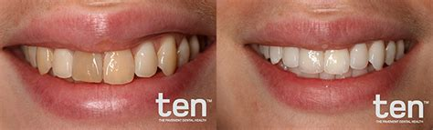 teeth whiteners picture 6