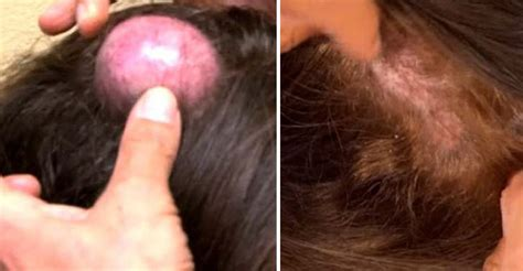 is it common to have a large cyst picture 5