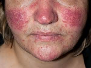 acne roseca picture 7