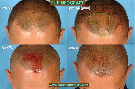 cheapest neo graft picture 9
