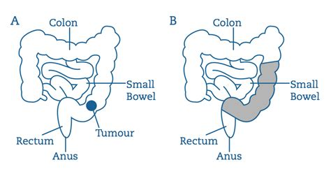 what happens after colon cancer resection picture 4