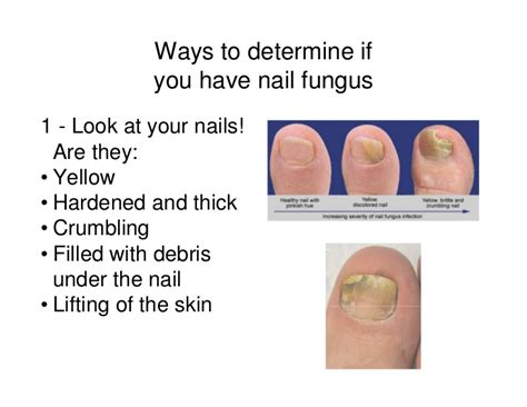 does nail fungus affect overal health picture 1