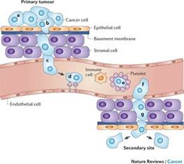 Metastisis of prostate cancer to the lliver picture 17