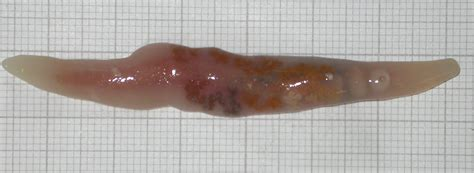 signs of intestinal worms in humans picture 9