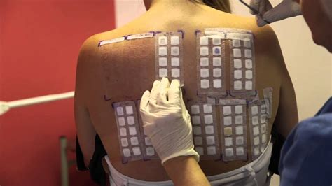 skin patch test picture 11