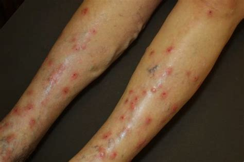 stress itchy skin picture 18
