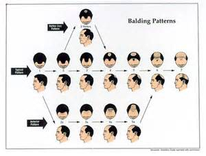 apecia hair lose picture 2
