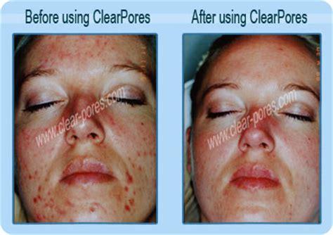 acne antibiotics picture 13