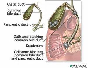 gall bladder inflammation picture 15