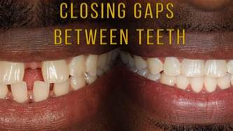 average price to close gaps in teeth picture 2