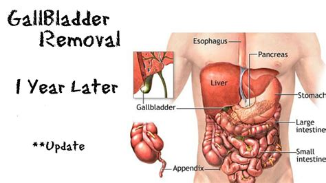 how do you take a gall bladder out picture 3