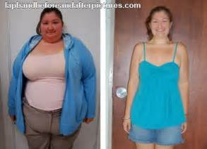 bariatrics weight loss picture 6