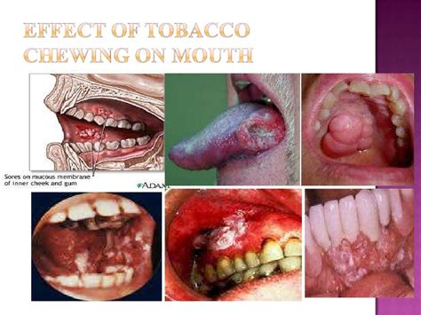 cigars teeth picture 1