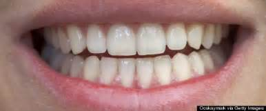 boston tooth whiten picture 2