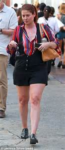 cellulite thighs picture 10