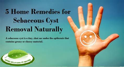home remedies for unopened sebacious cysts picture 5