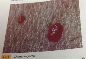 blood vessels and strech marks on penis head picture 2