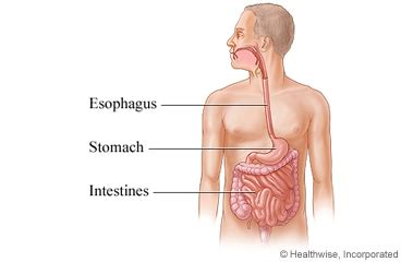 upper gastrointestinal exams picture 6