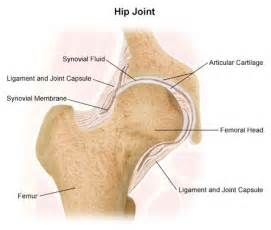 coxa vulga of hip joint picture 13