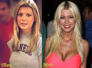 breast actives before after picture 3