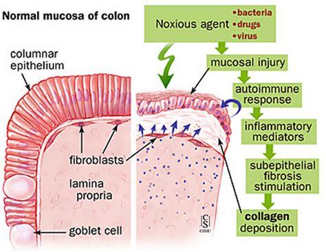 acute colitis diet picture 19