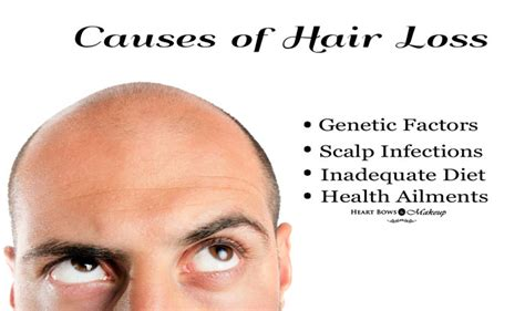clonidine causes hair loss picture 15