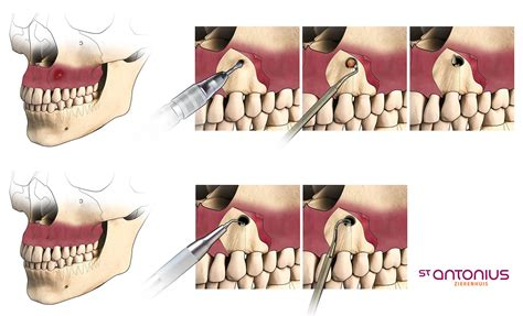 ligation of exposed tooth picture 10