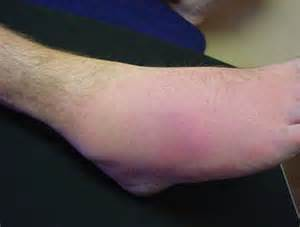relieve bunion twinges of pain picture 5