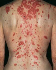 lupus and acne skin problems picture 6