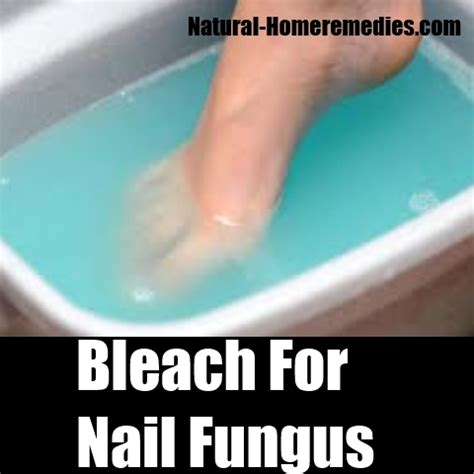 home remedies for toenail fungus picture 6