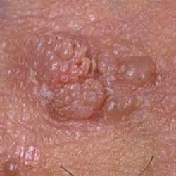 support for genital warts picture 10