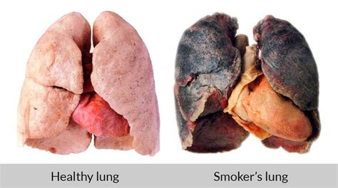 quit smoking lung clearing picture 2
