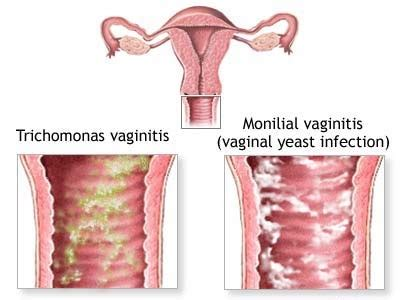 yeast swelling vaginal opening picture 15