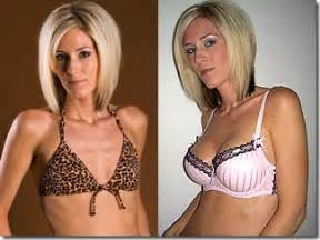 cost of breast enlargement picture 3