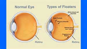floaters in your eyes and the liver picture 2