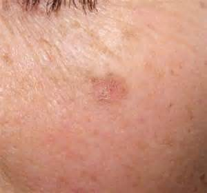skin cancer attenant caratosis picture 11
