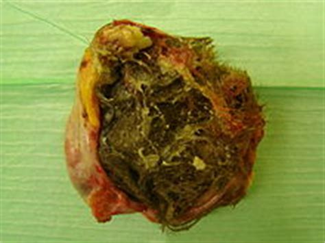 dogs colon rectomy picture 15