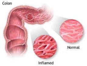 colon illnesses picture 7