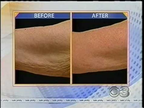 excess lateral arm skin picture 1