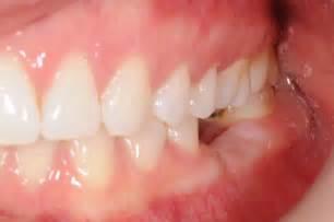 3-d dental h picture 13