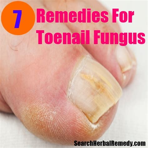 nail fungus remedies picture 17