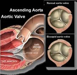 erectile dysfunction and aortic heart valve picture 19