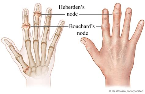 first finger joint pain picture 15