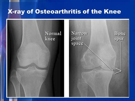 medial knee pain + joint space picture 10