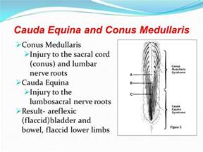 cauda equina bladder picture 5