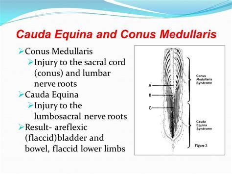 cauda equina bladder picture 1