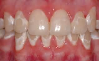 children yellow teeth whitening picture 11
