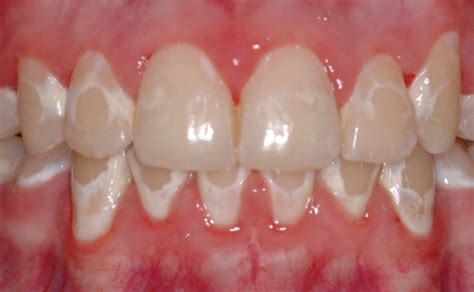 children how to whiten yellow teeth picture 9