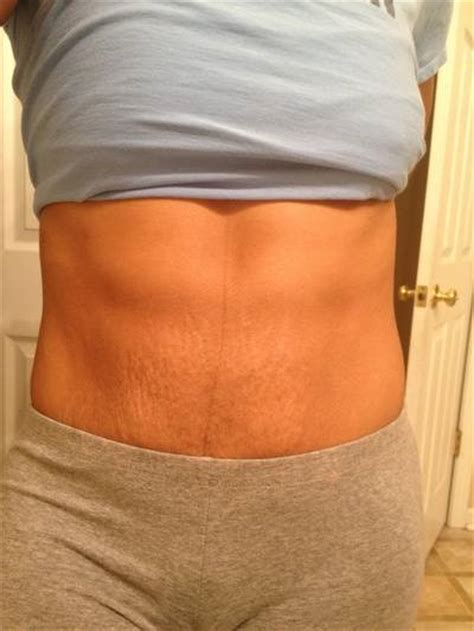 tummy tuck and stretch marks picture 5